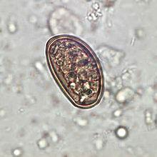 Dendriticum