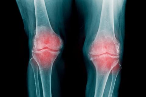Diferencias artrosis y artritis