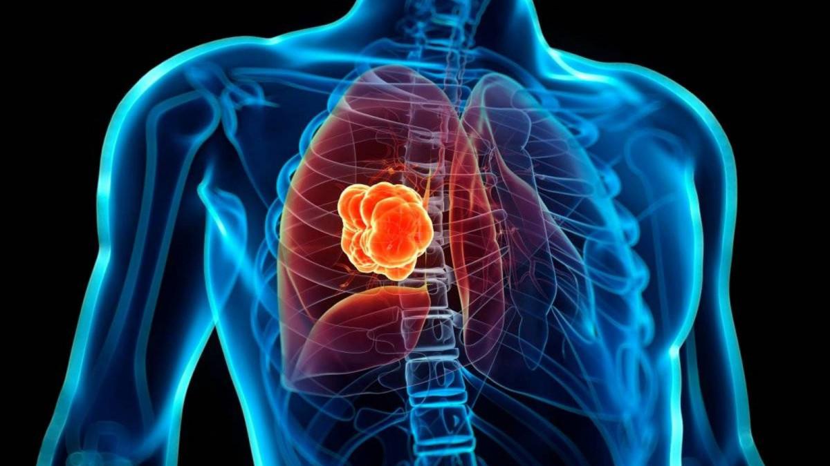 Cáncer pulmón