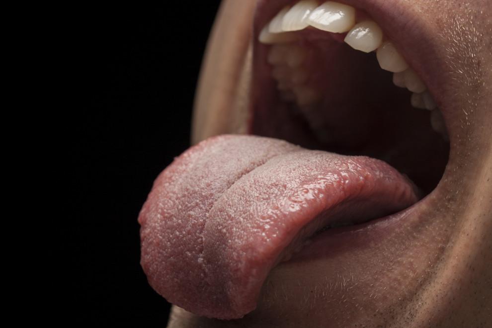 Partes lengua