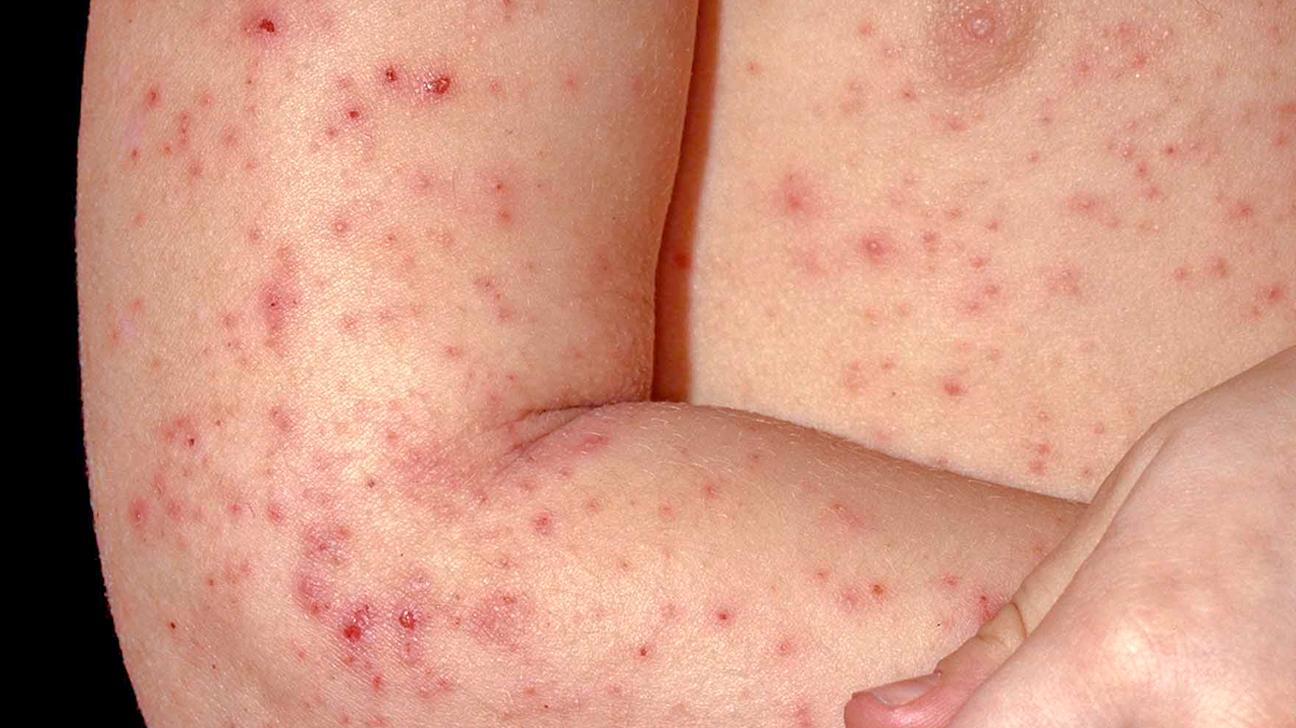 Eczema folicular