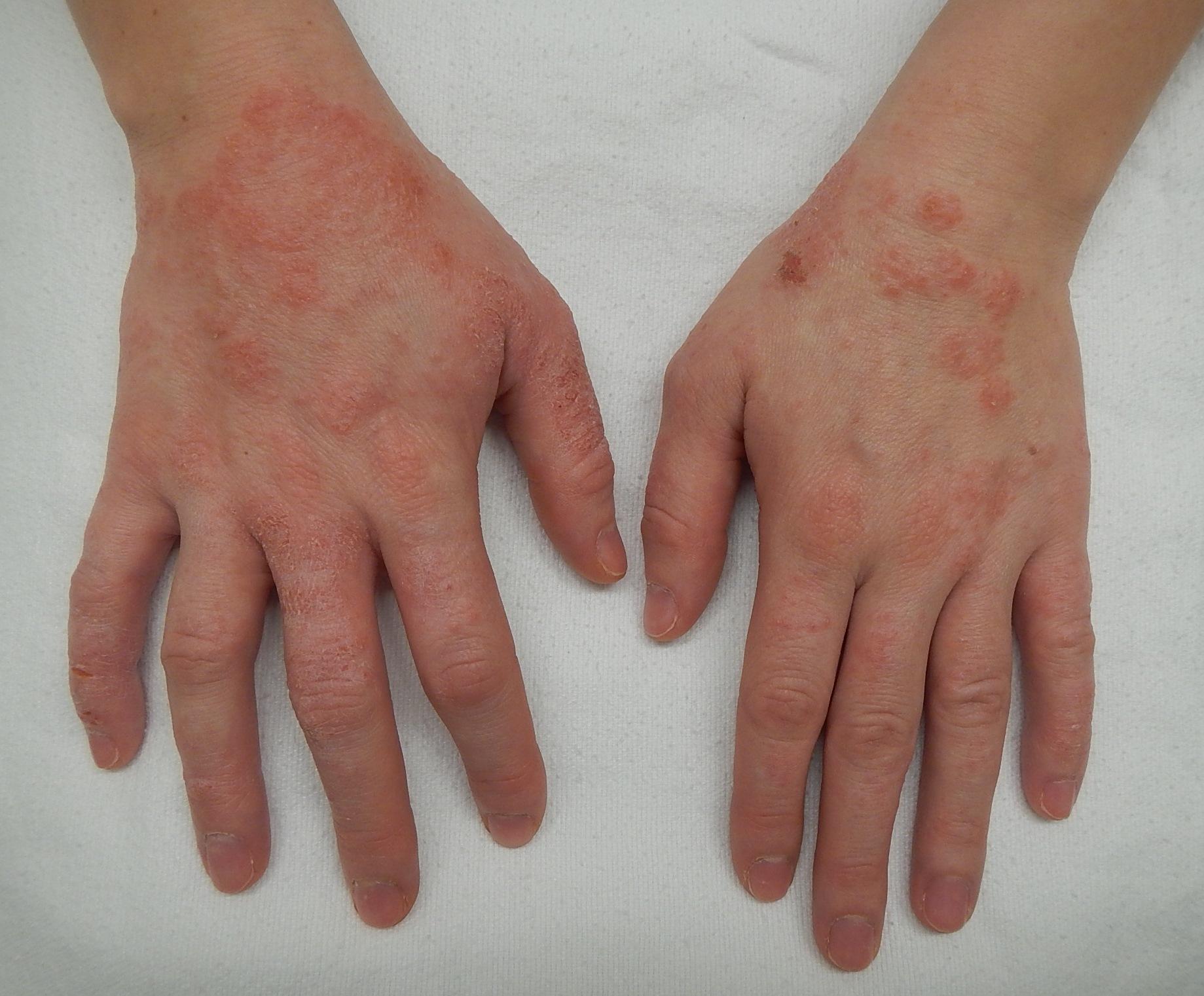 Dermatitis contacto