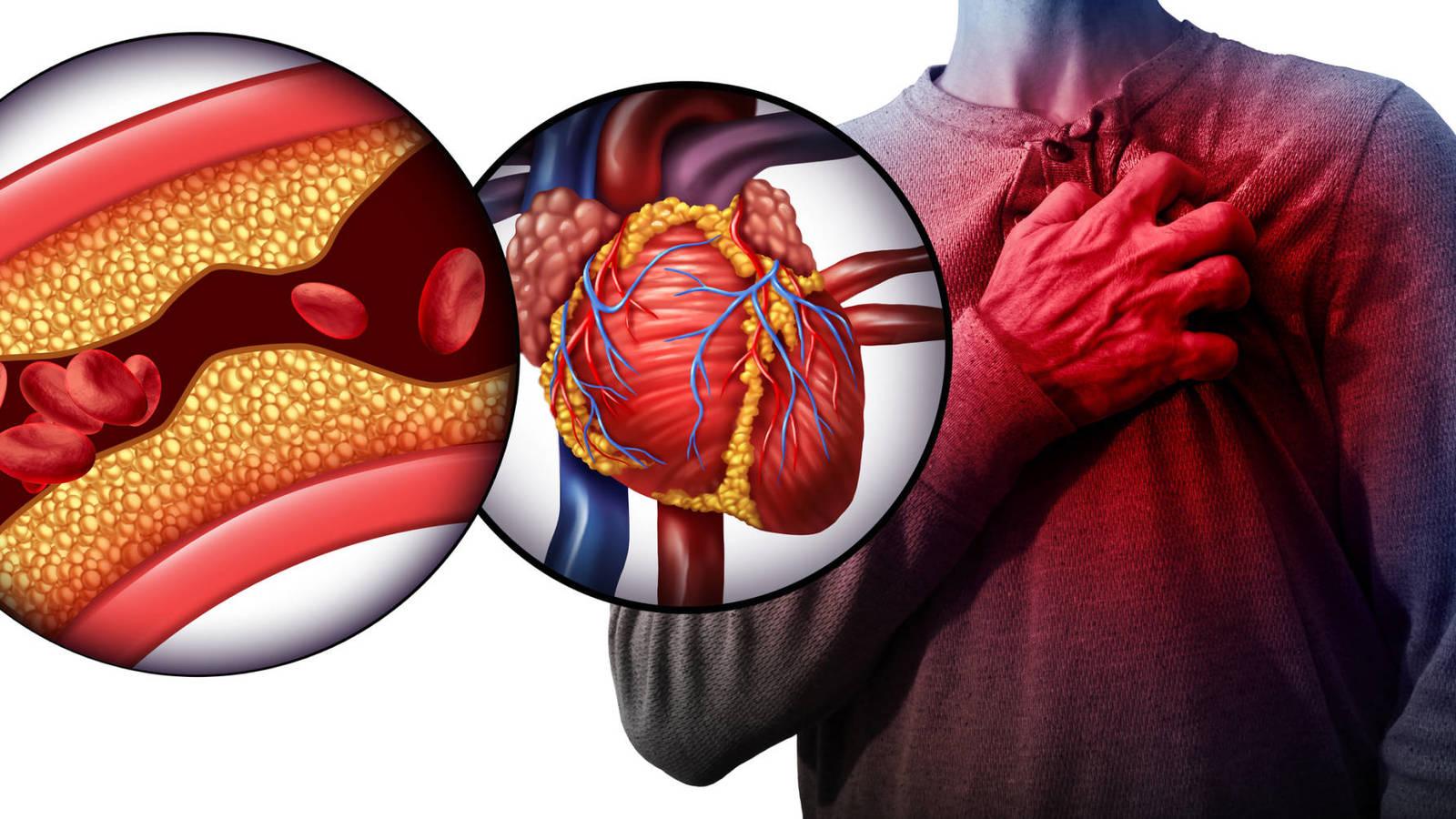 Colesterol complicaciones