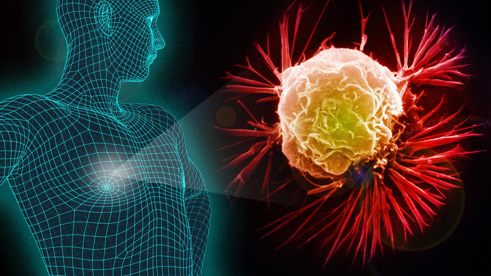 Enfermedades oncológicas