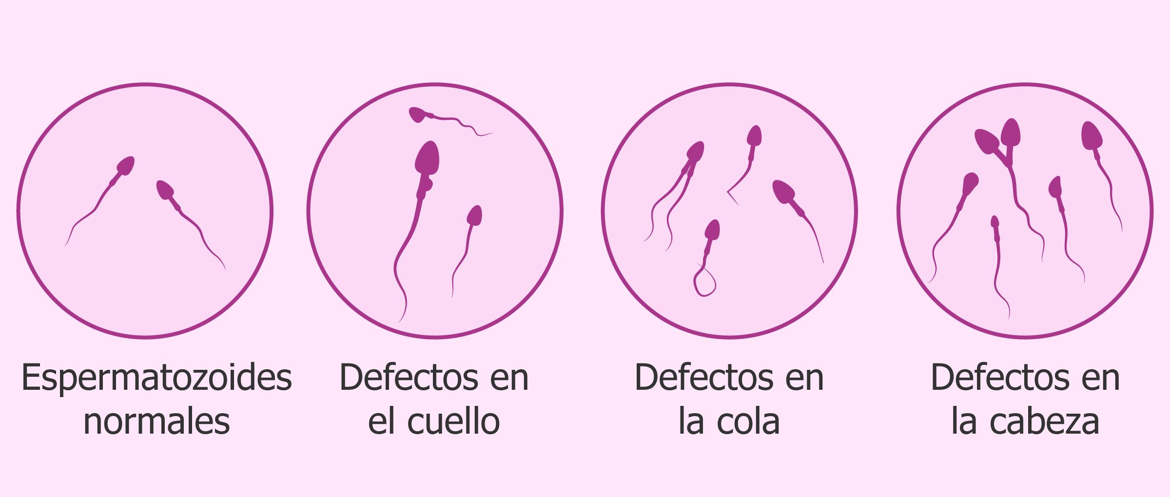 Espermatogénesis maduración