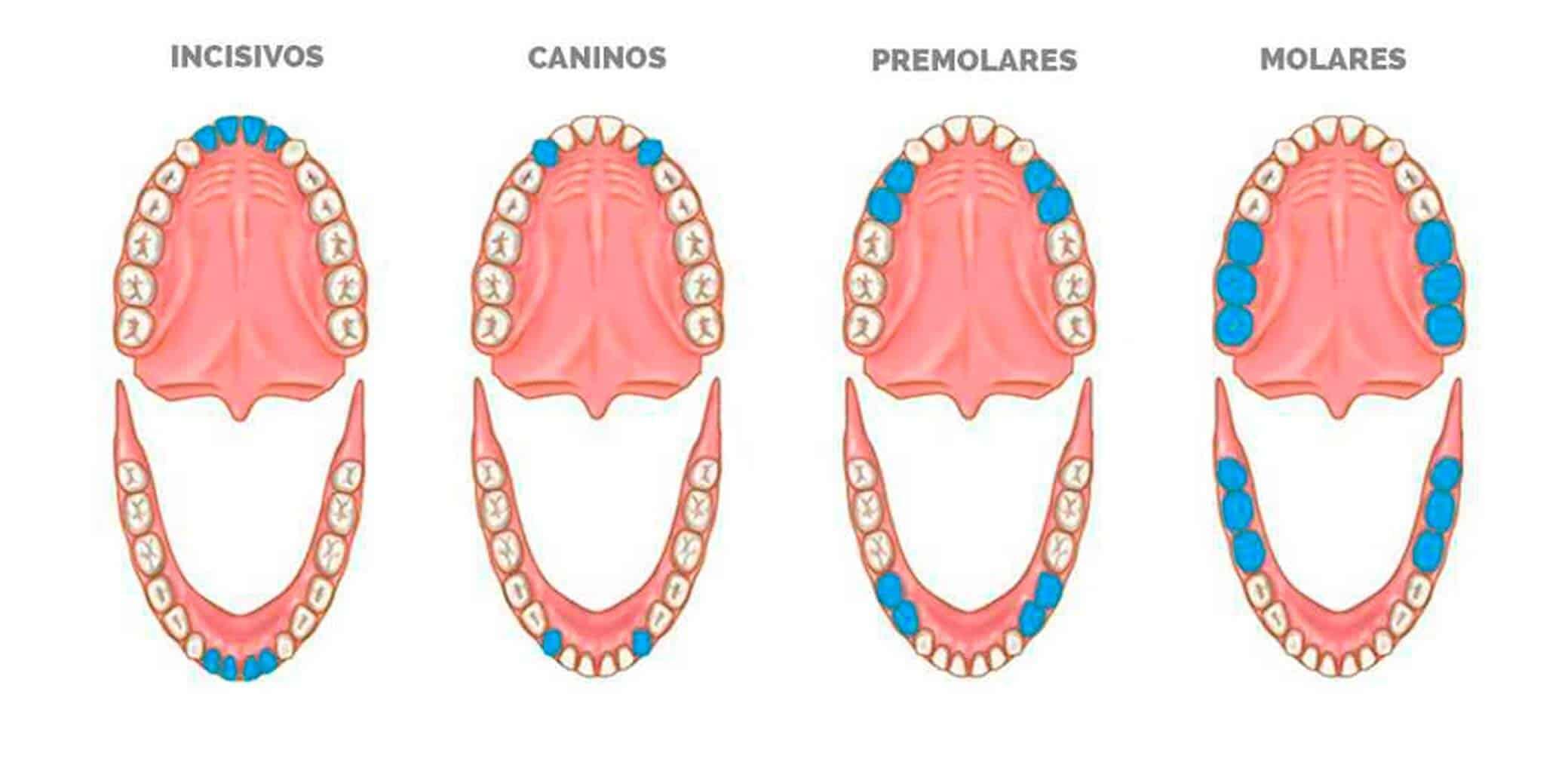 Tipos dientes