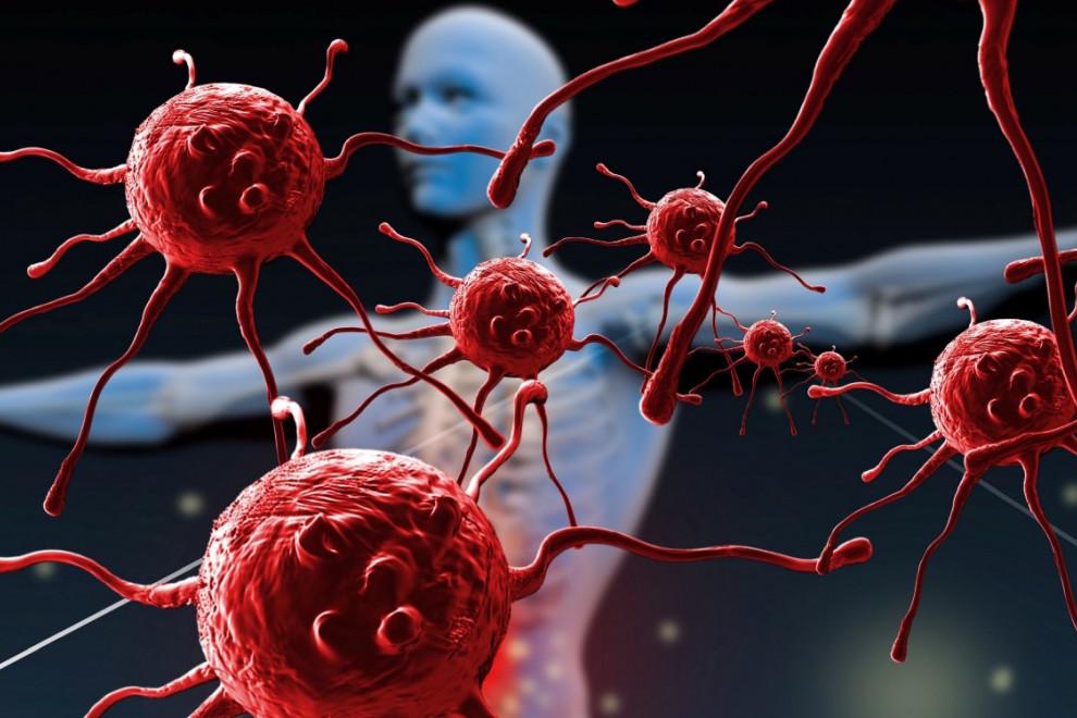 Enfermedades sistema inmunitario