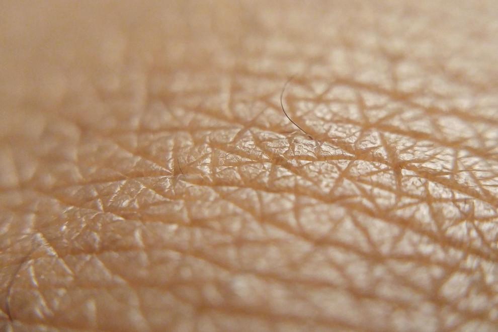 Tipos piel