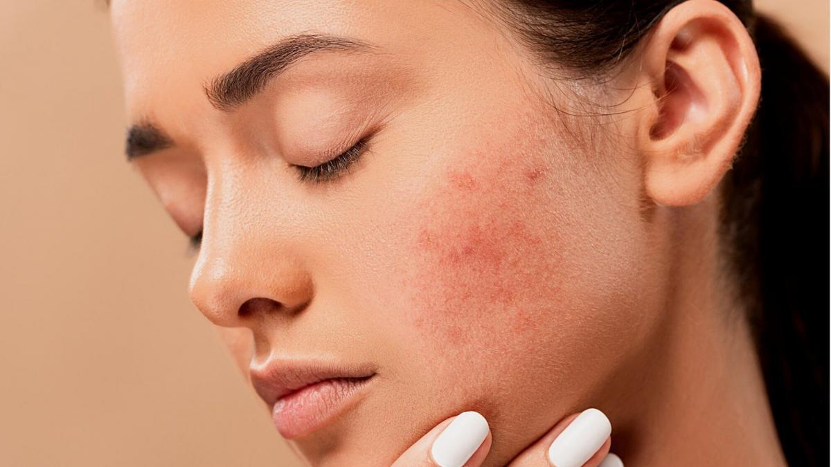 Los 7 Tipos De Granos En La Cara Y Cómo Tratarlos