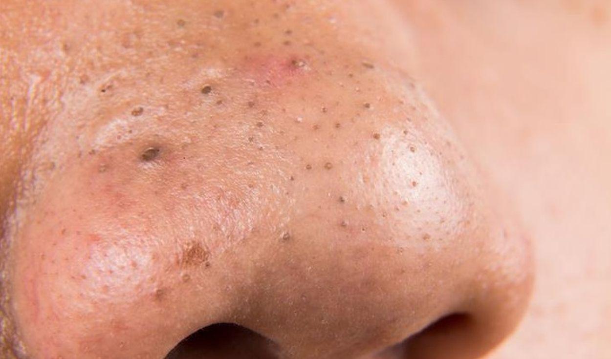Puntos negros nariz