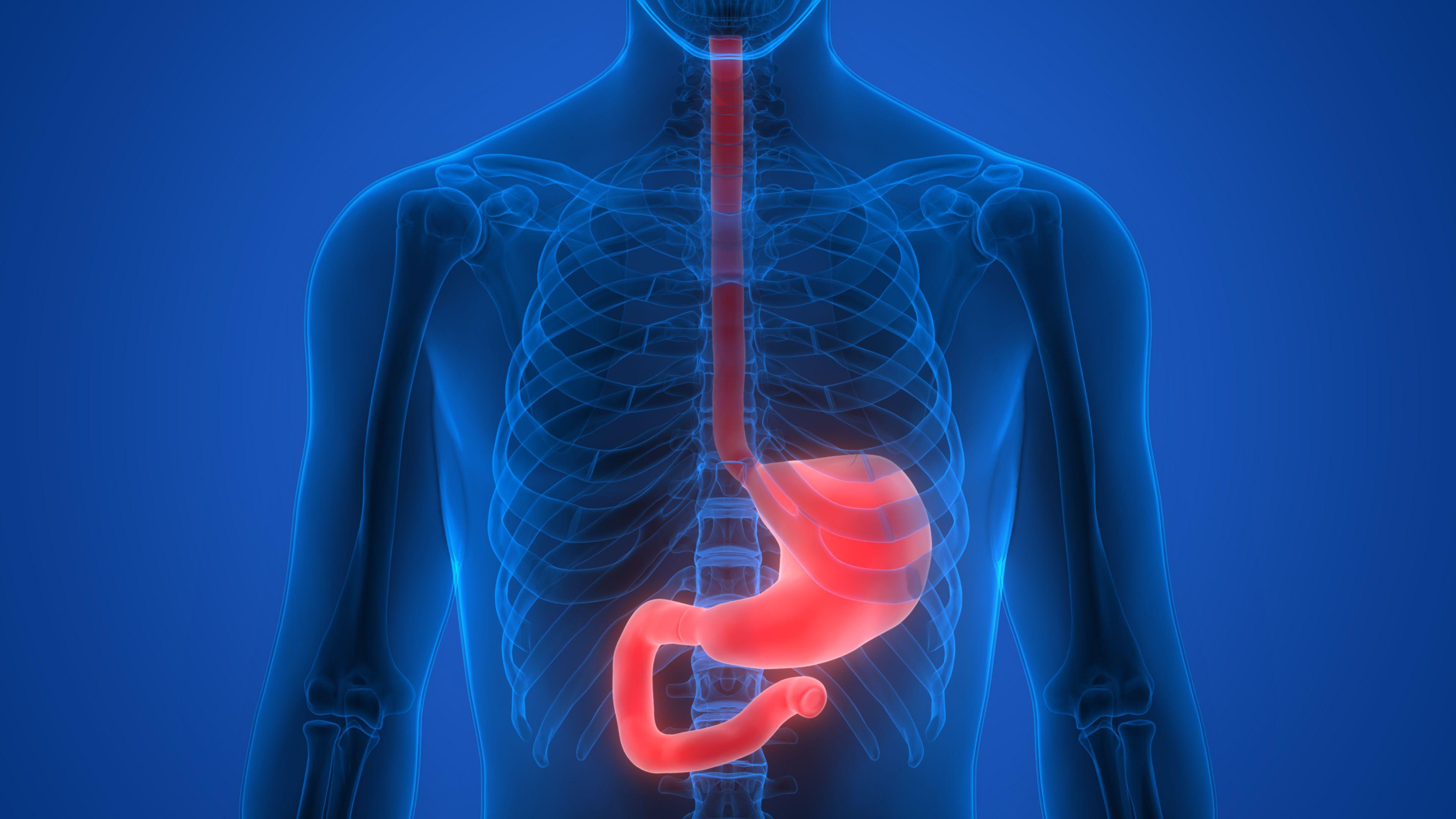 Úlcera esofágica