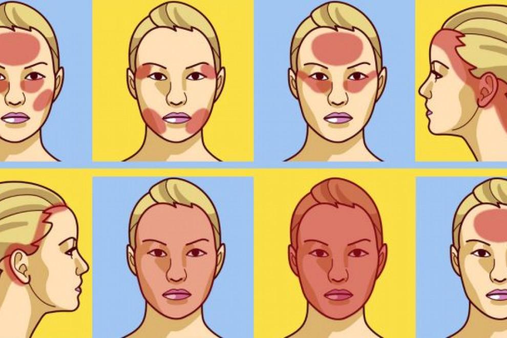 Diferencias entre migraña y dolor de cabeza