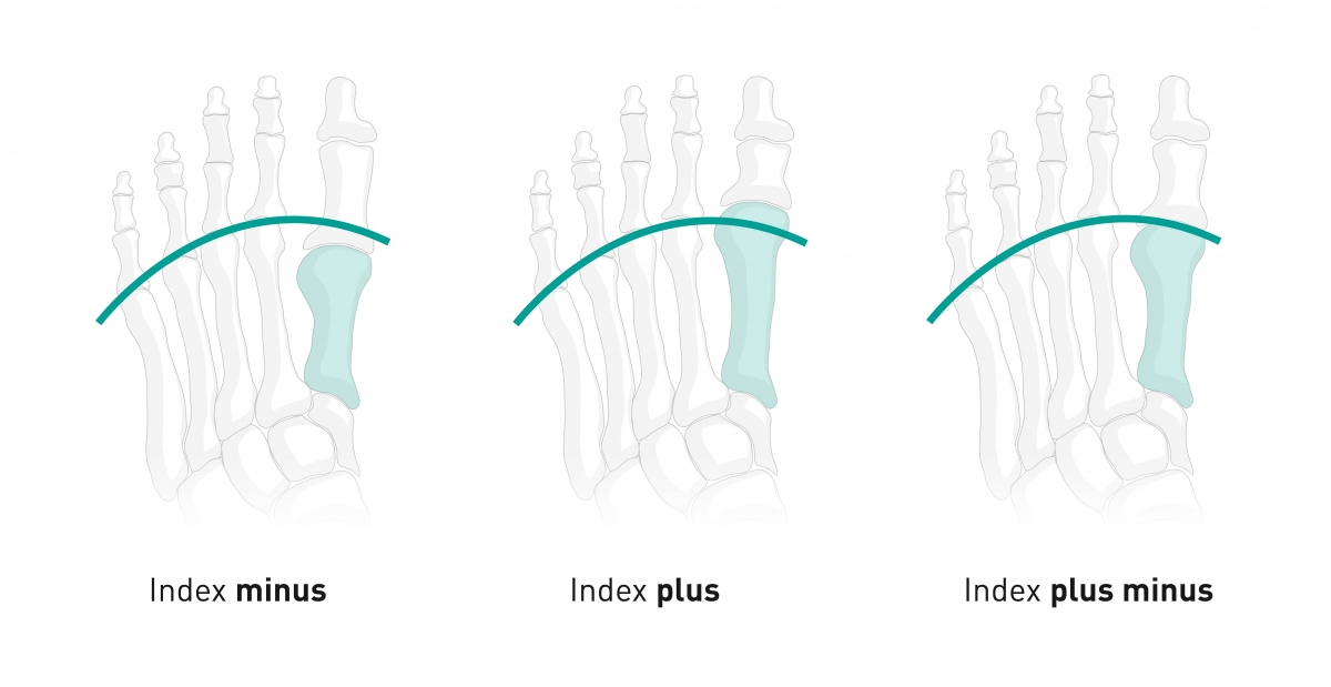 Tipos pies index