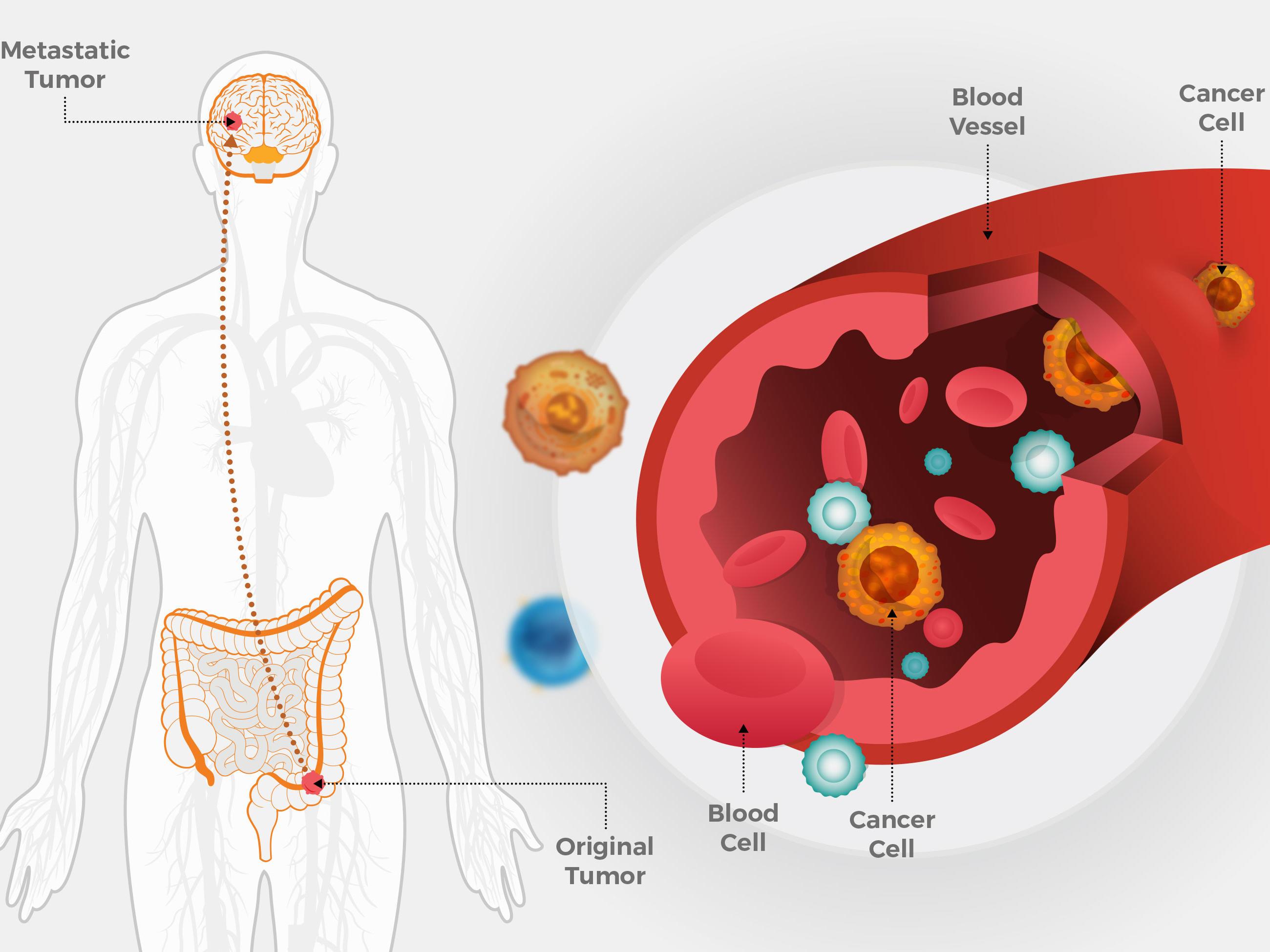 Metástasis hematógena