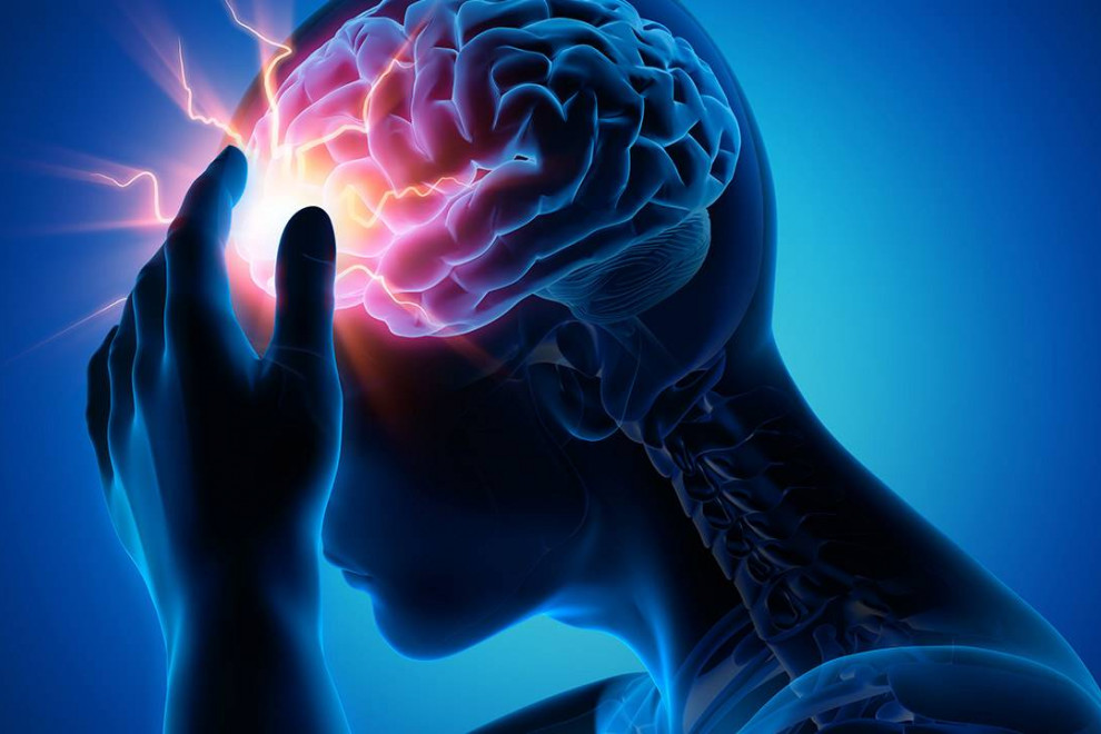 Diferencias aneurisma derrame cerebral