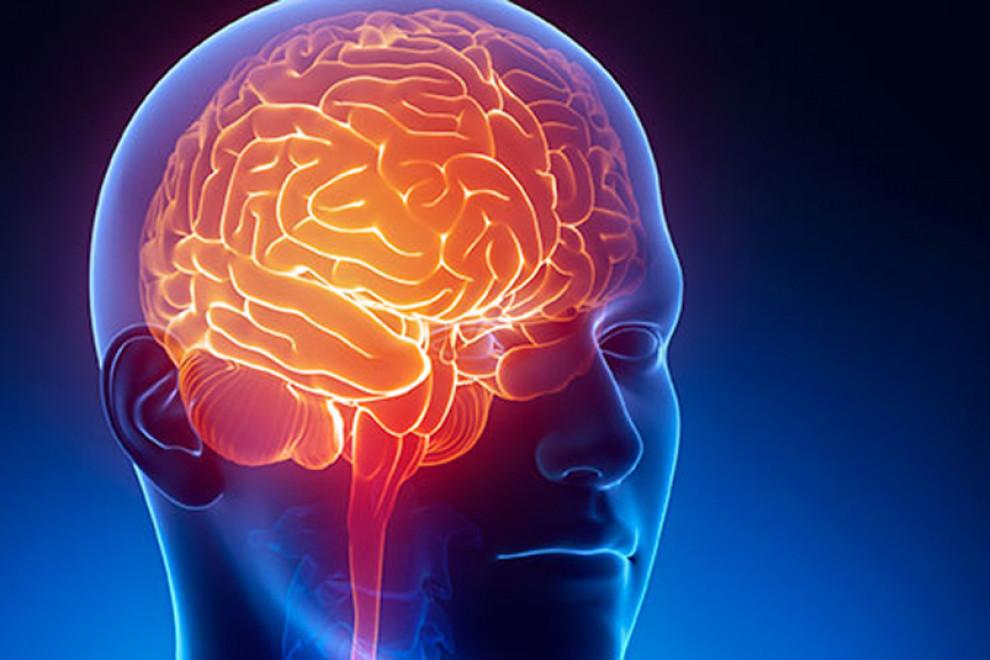 Tipos de neurólogos