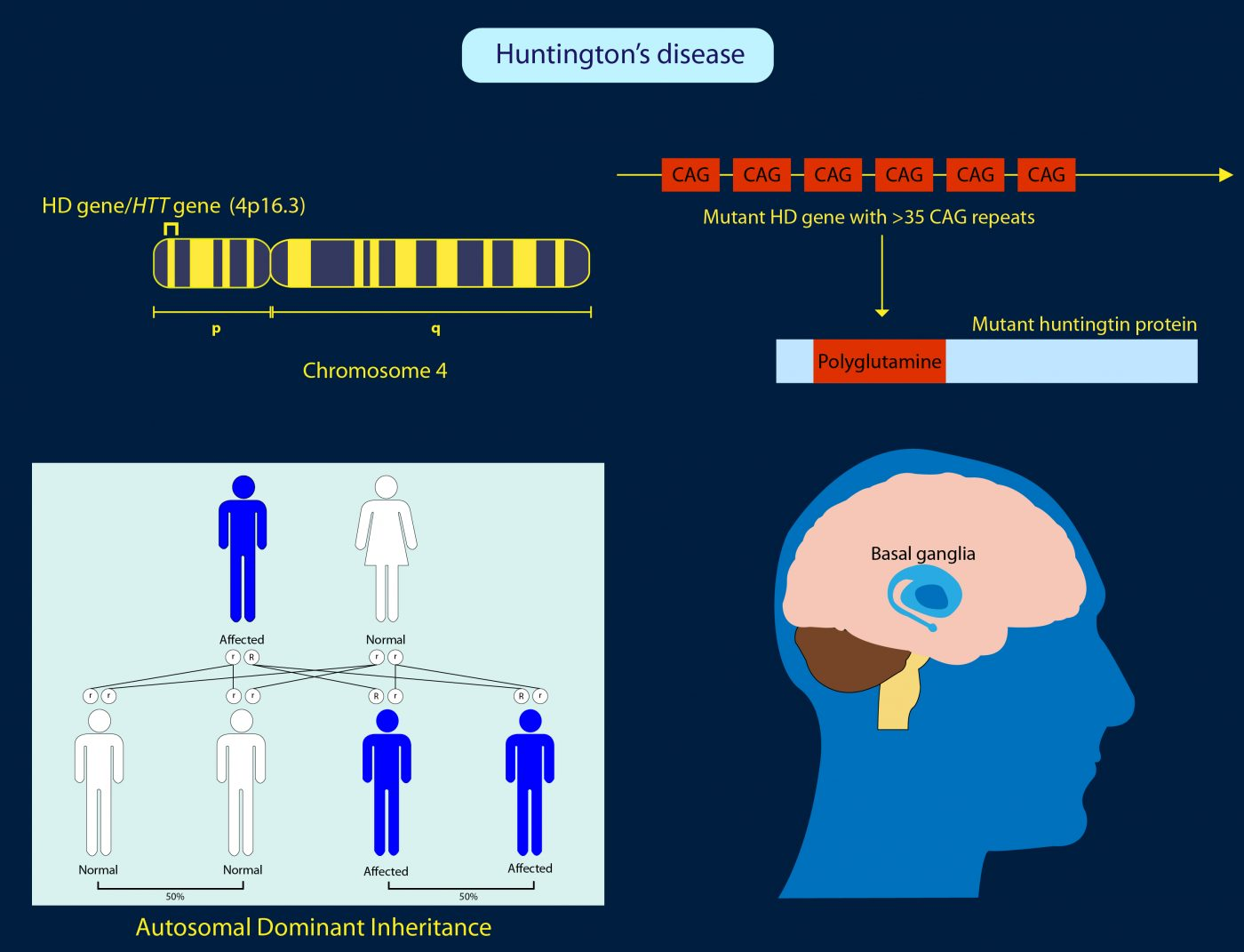Enfermedad Huntington genes