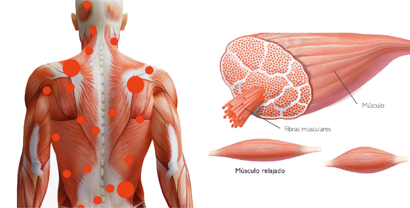 Espasmo muscular