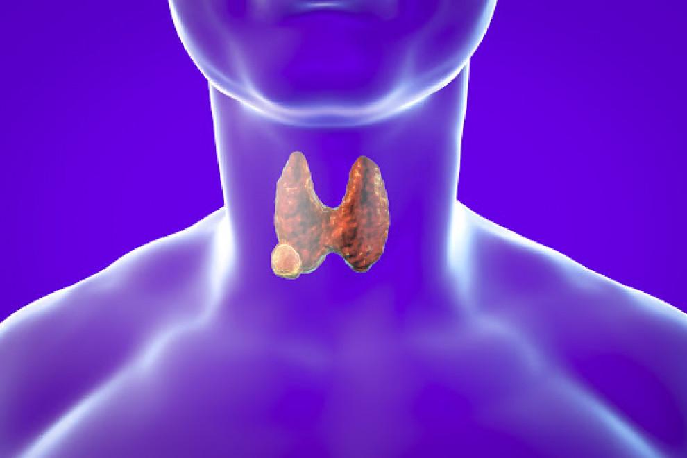 Cáncer tiroides post