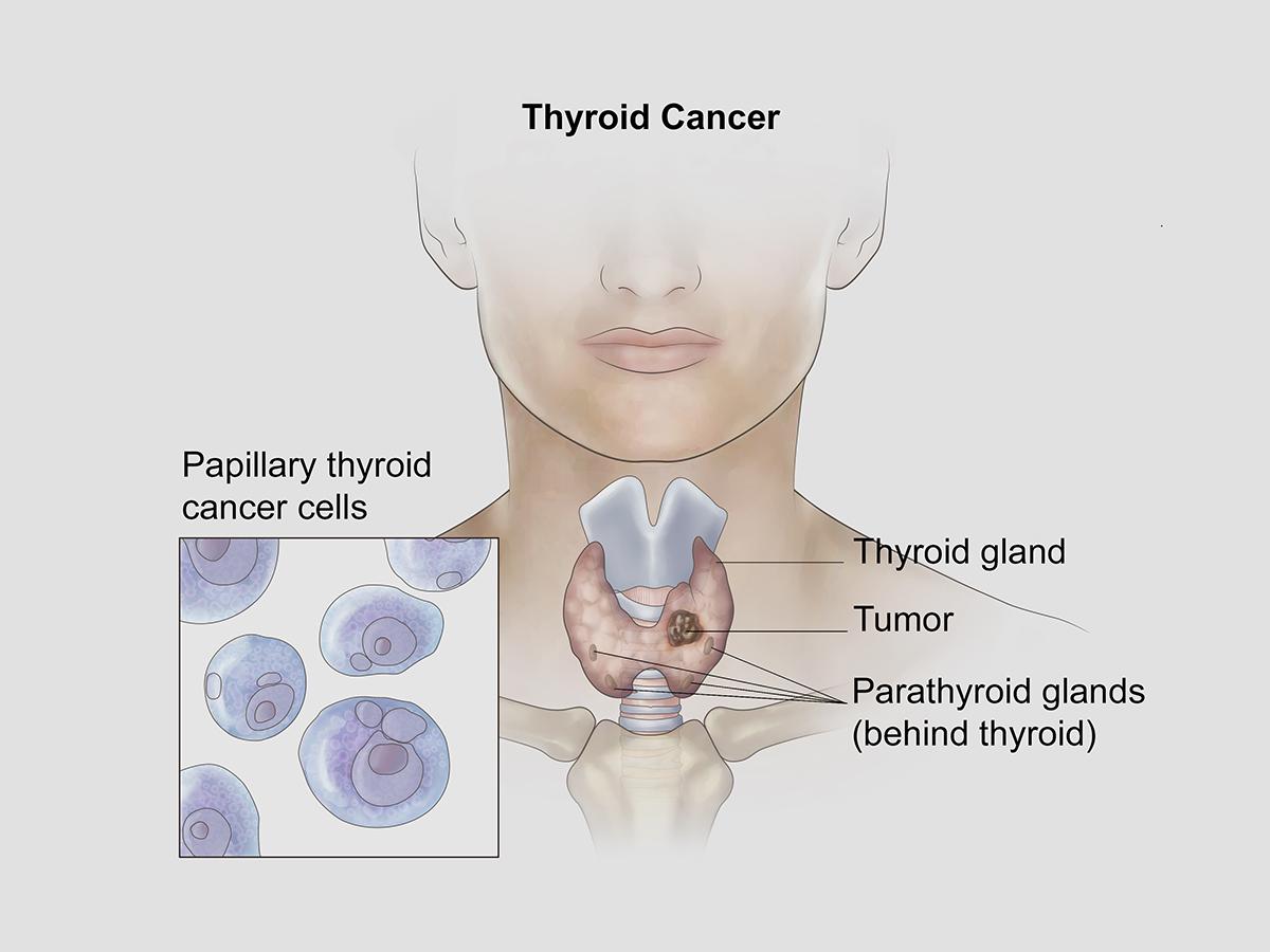 Qué es cáncer tiroides
