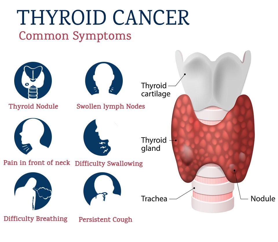 Síntomas cáncer tiroides