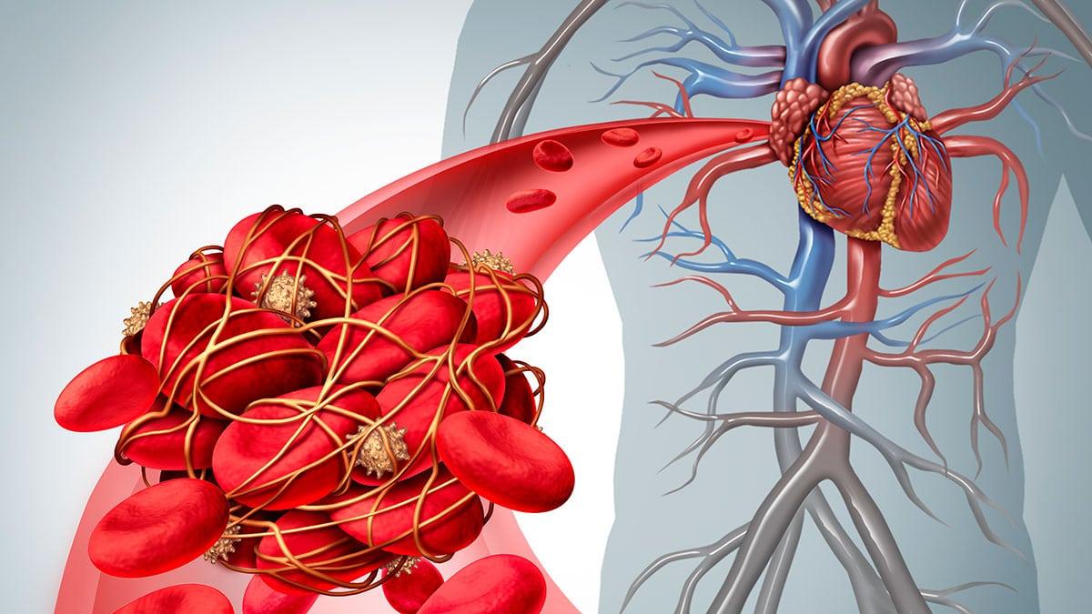 Embolia coágulo sanguíneo