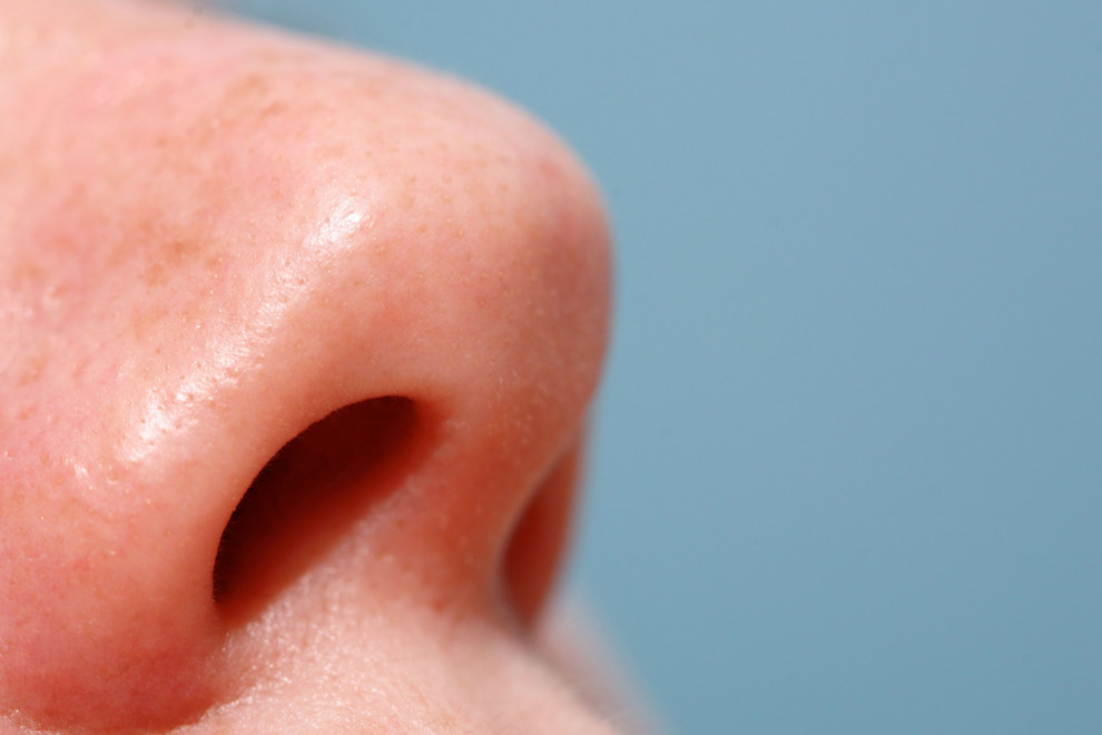 Sinequias nasales