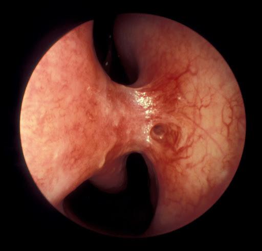 Sinequia nasal qué es