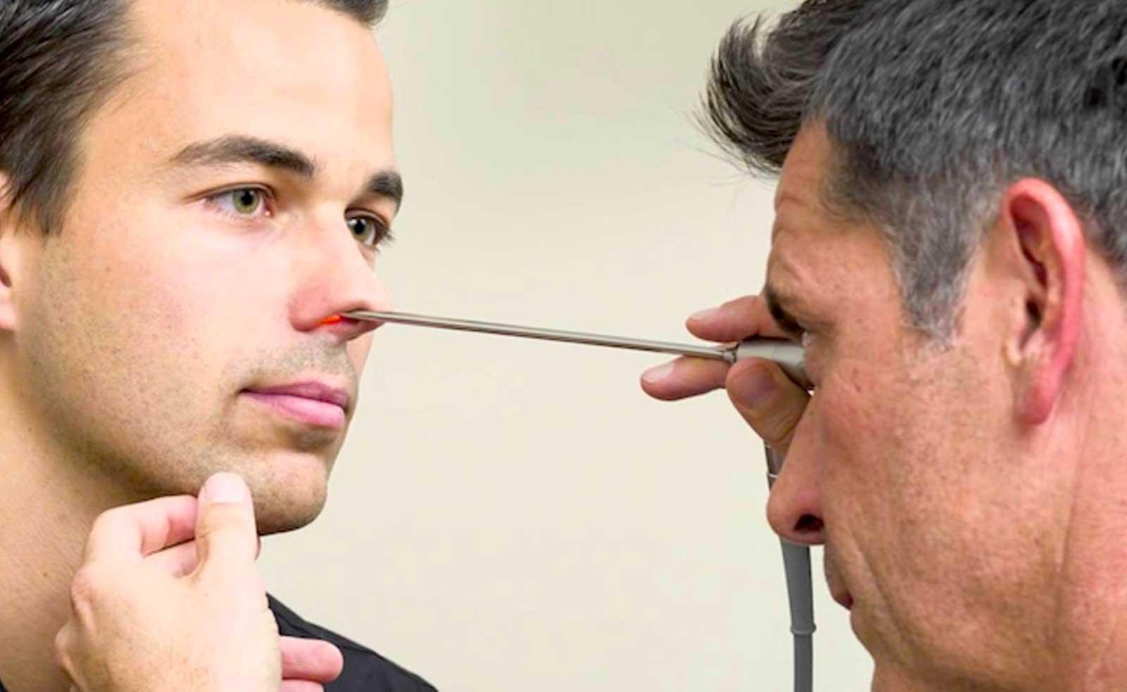 Sinequia nasal tratamiento
