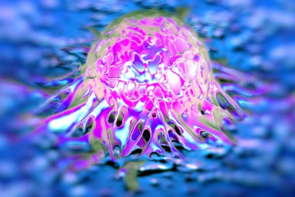 Tipos de cáncer más raros