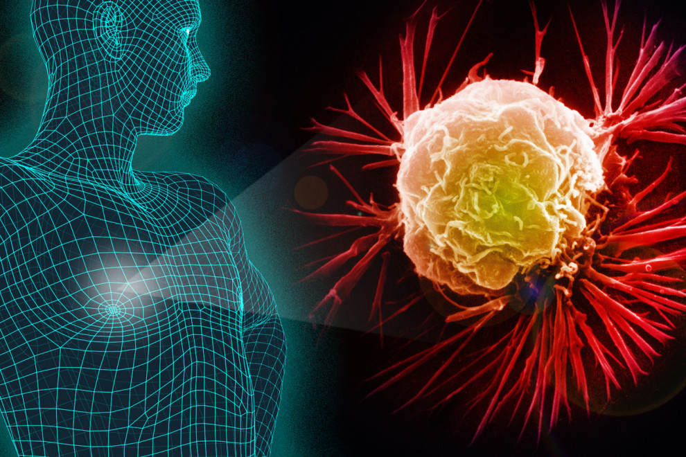 Cómo saber estás riesgo sufrir cáncer síntomas iniciales