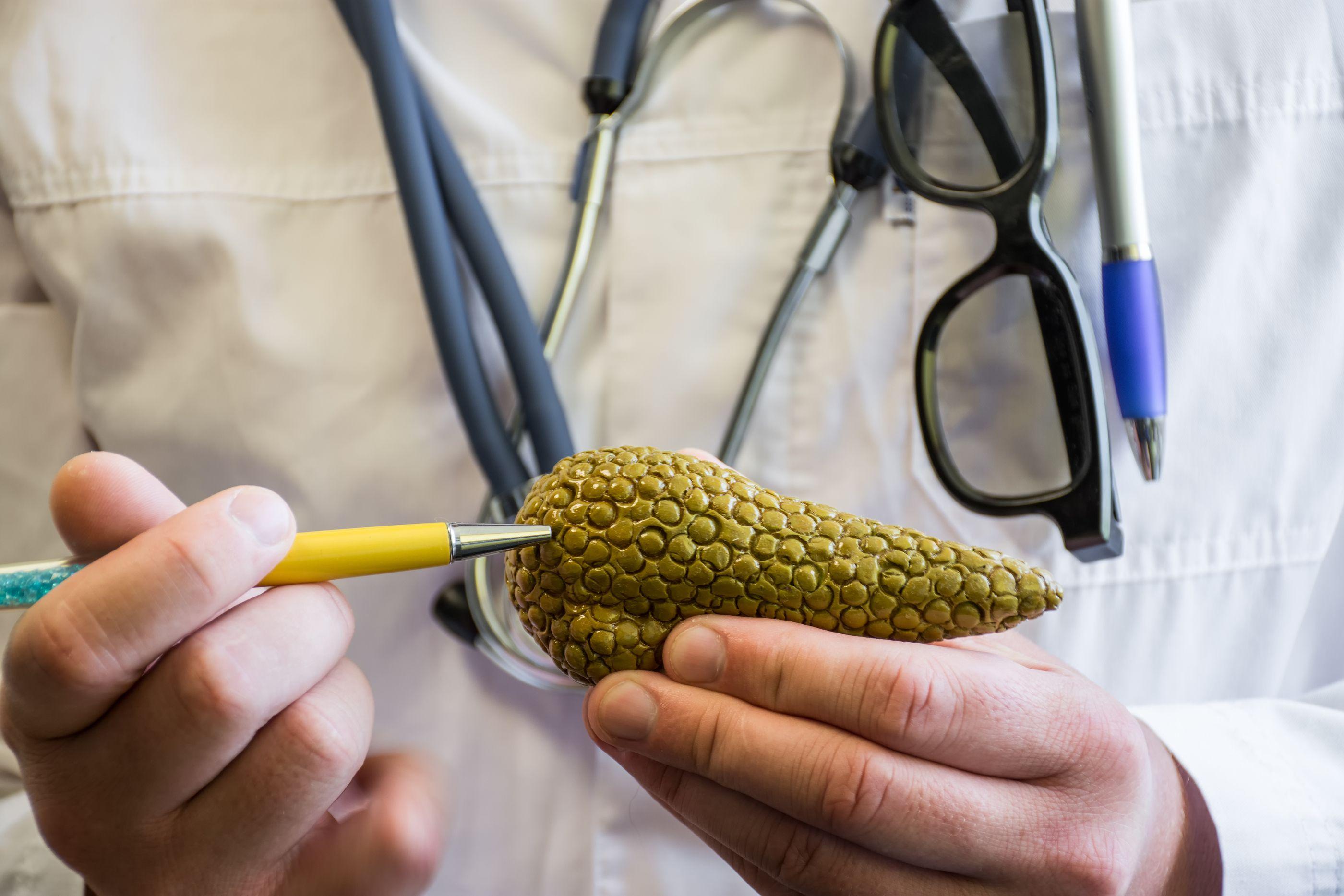 Causas cáncer páncreas