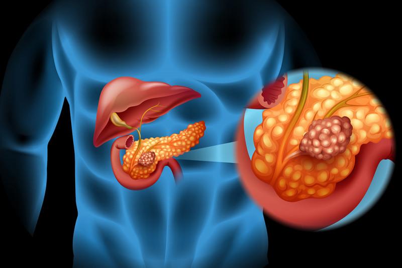 Síntomas cáncer páncreas