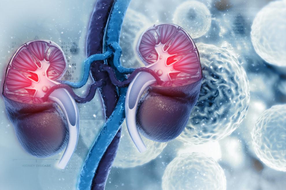 Cáncer riñón