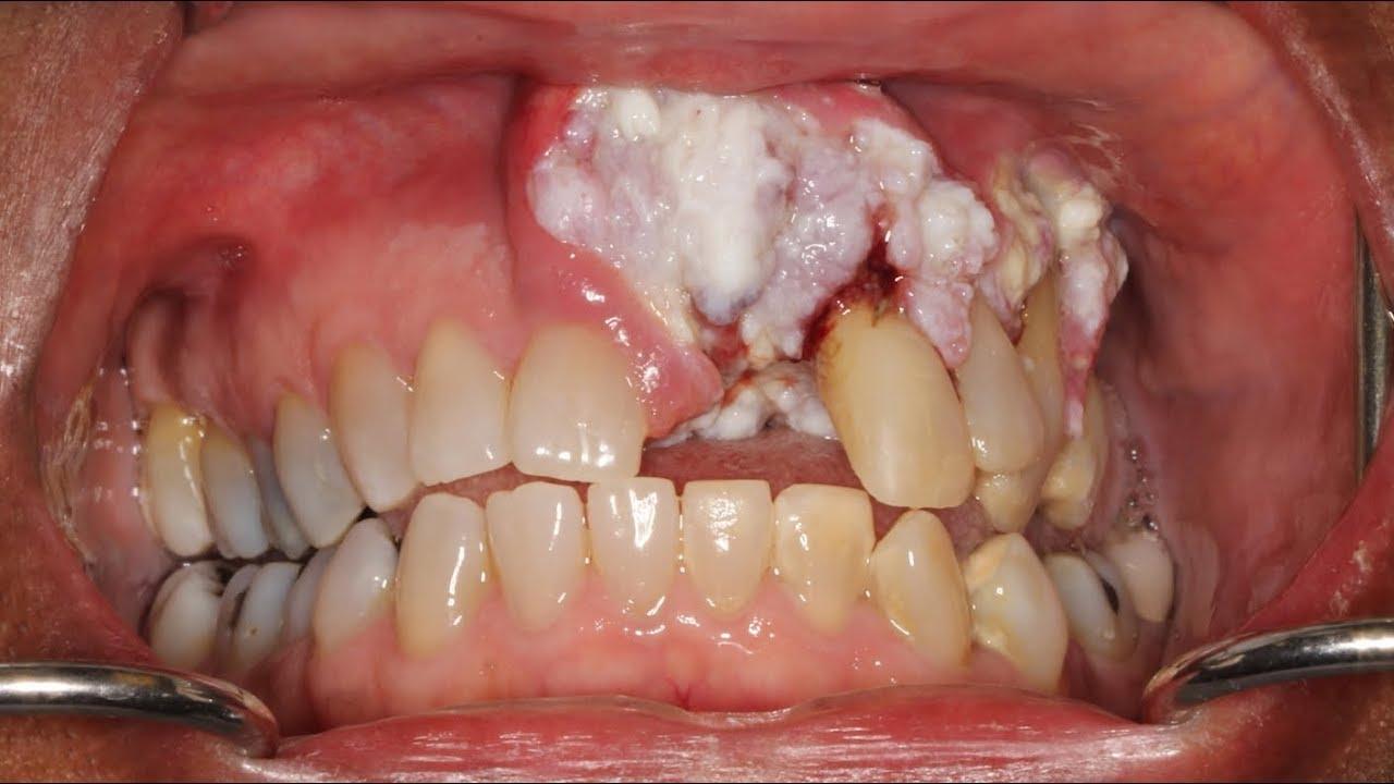Síntomas cáncer boca