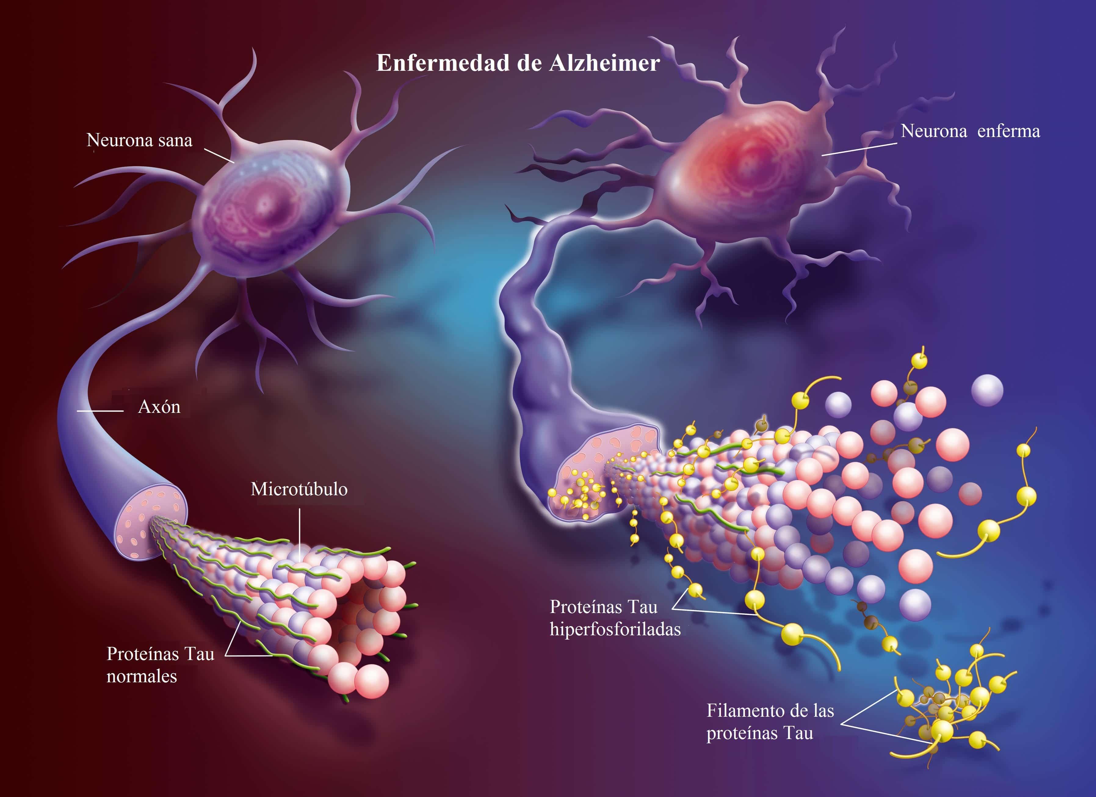 Alzheimer neuronas
