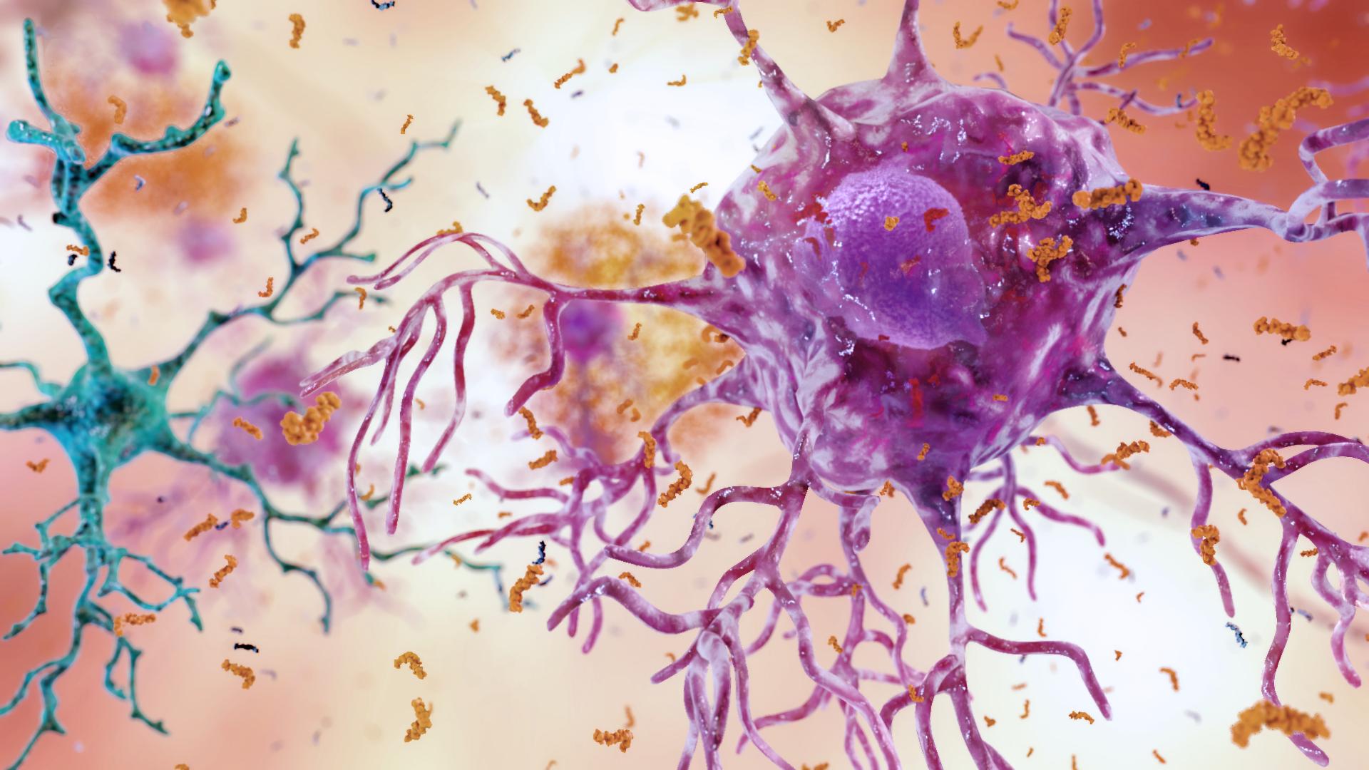 Toxinas Alzheimer