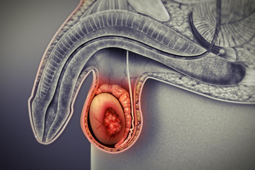 Cáncer testículos