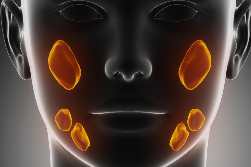 Cáncer glándulas salivales