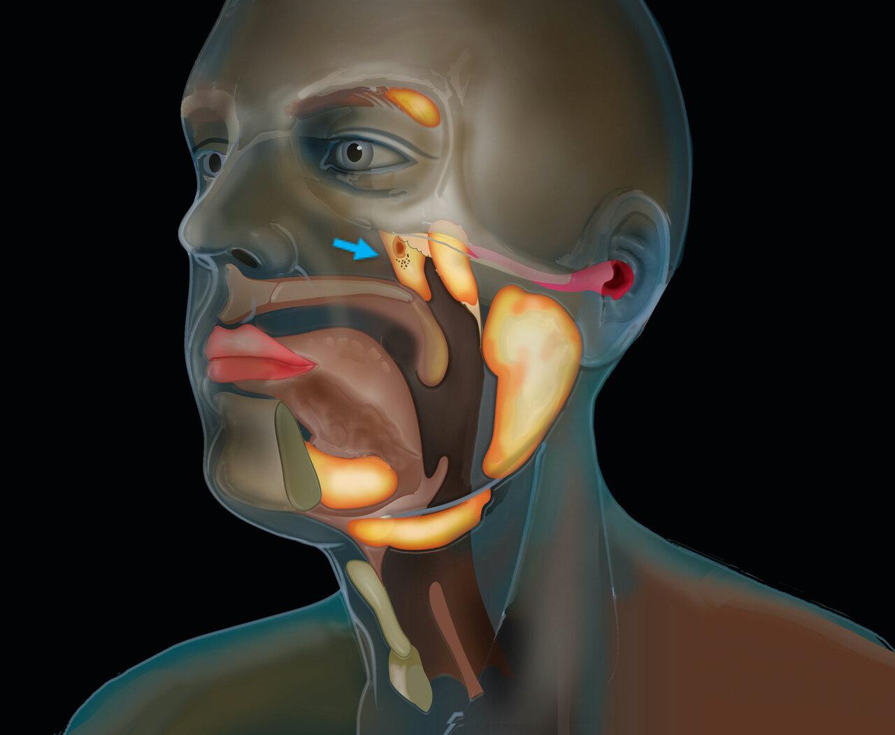Glándulas salivares cáncer