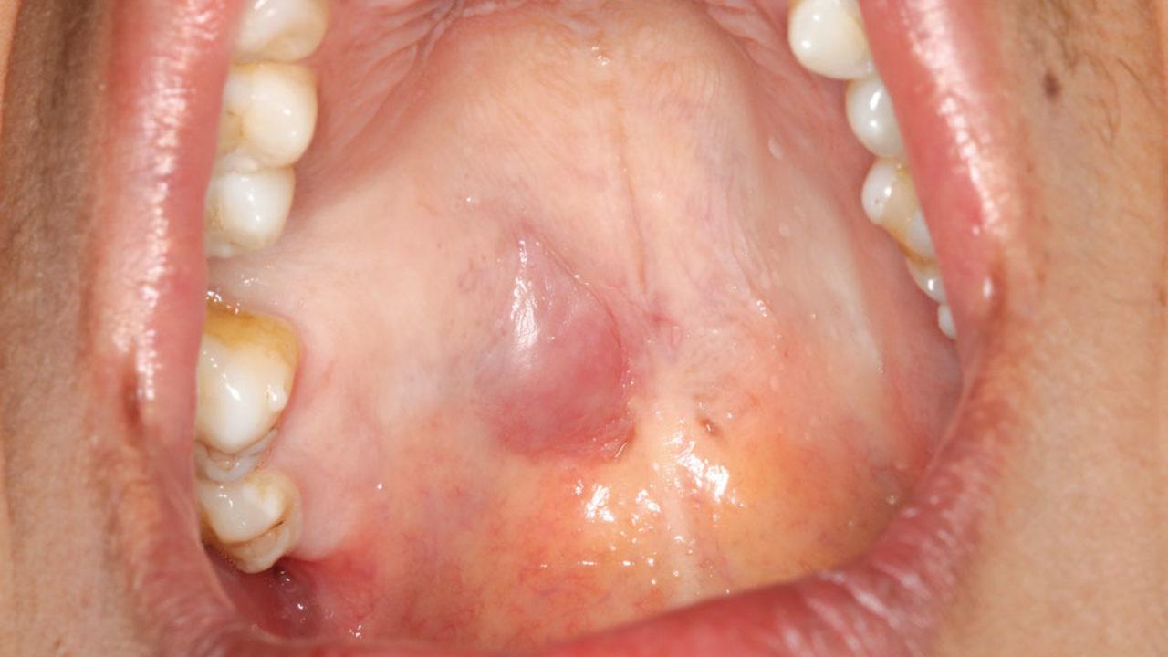 Cáncer glándulas salivales síntomas