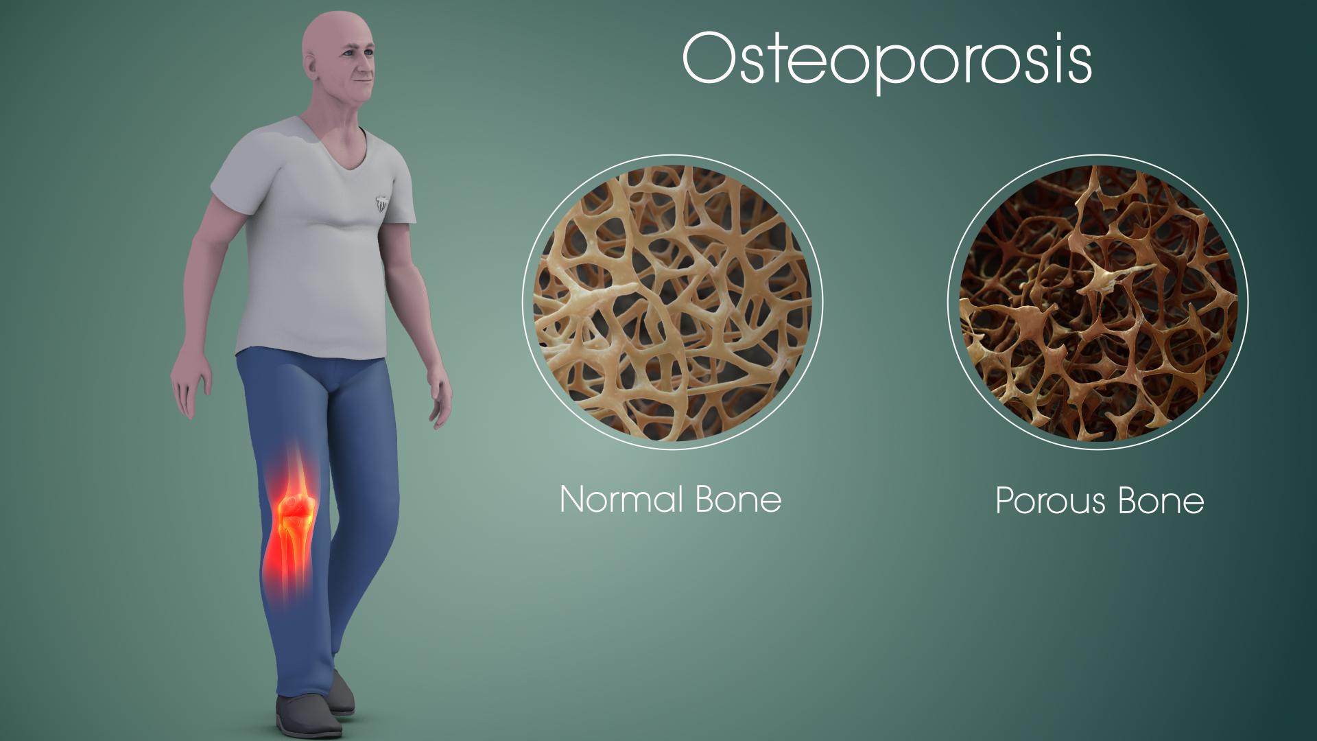 Qué es osteoporosis