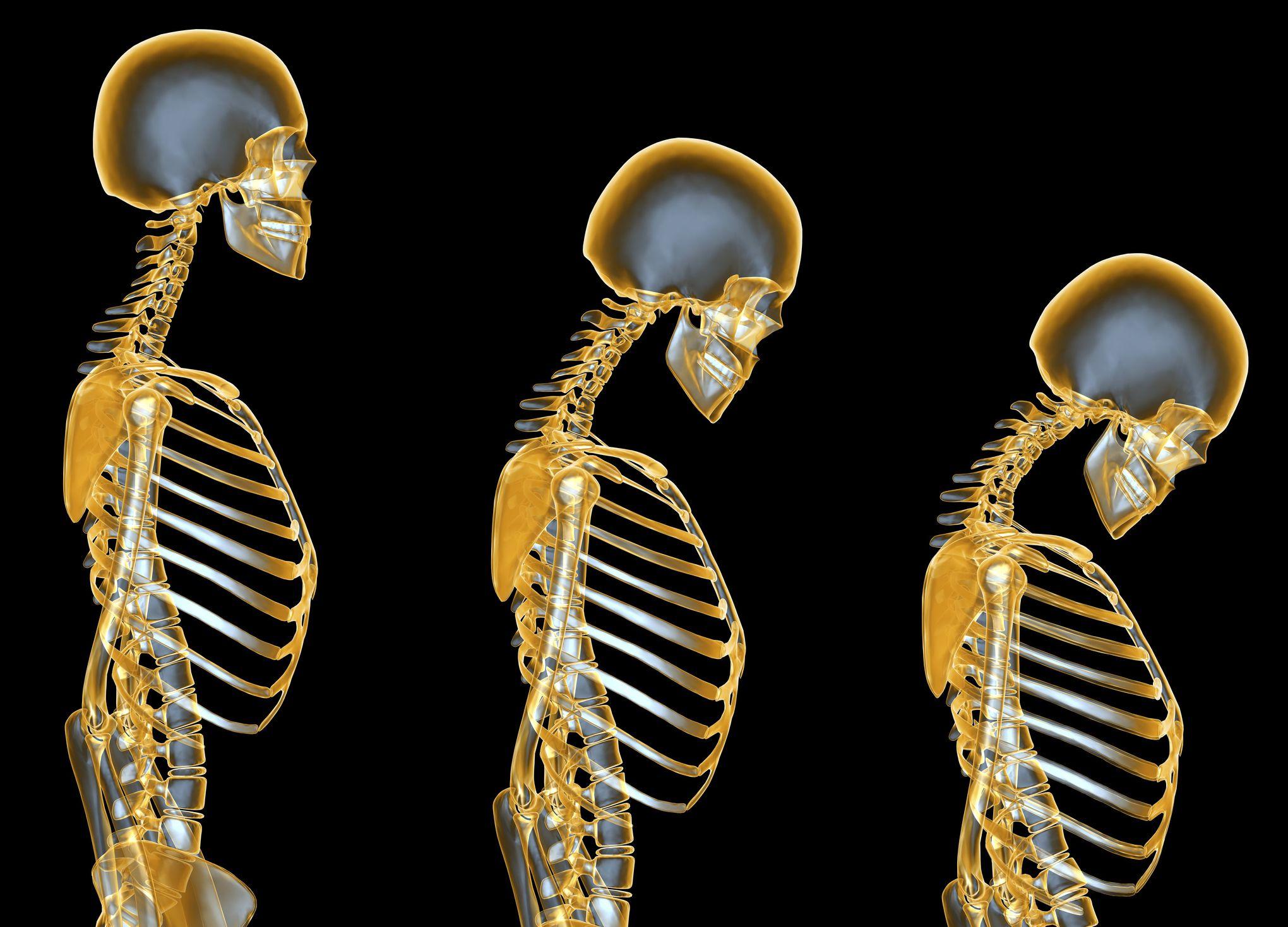 Síntomas osteoporosis