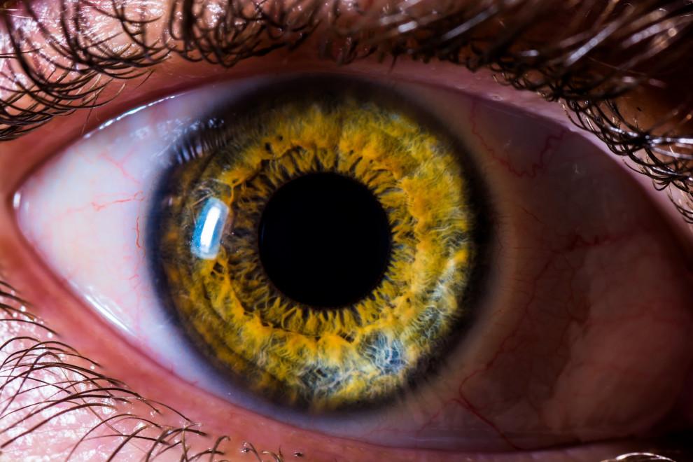 Desprendimiento retina