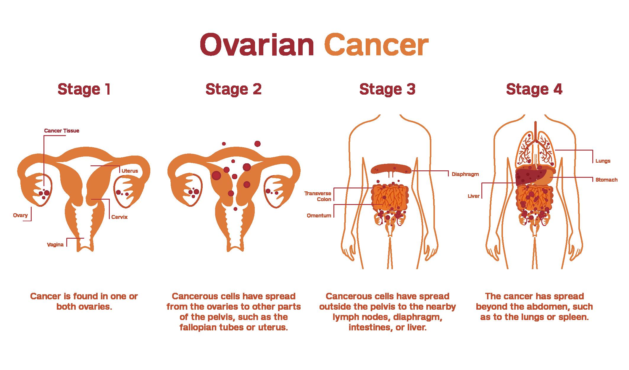 Etapas cáncer ovario