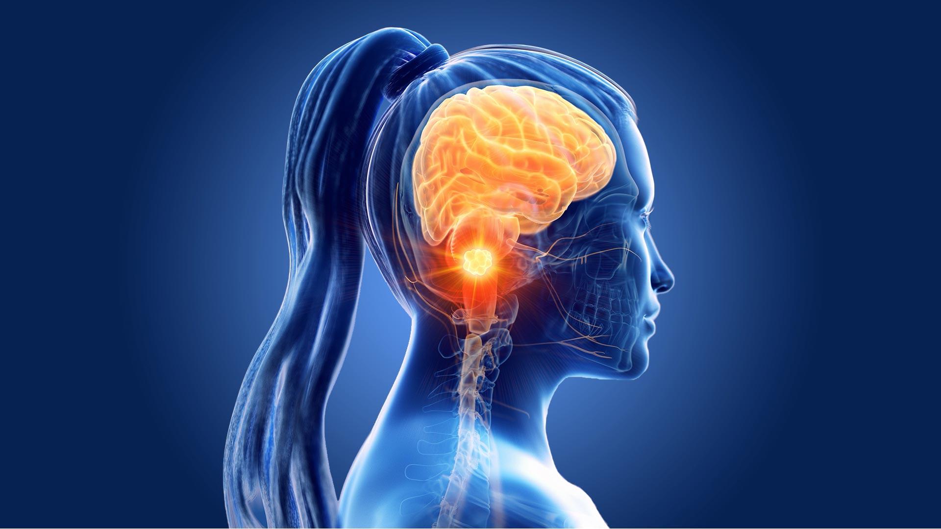 Cáncer cerebro causas