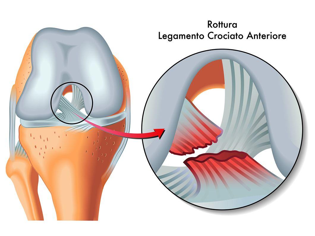 Lesión ligamento cruzado anterior