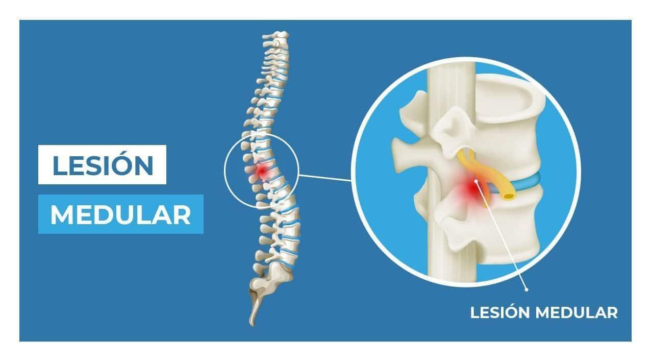 Lesión columna vertebral