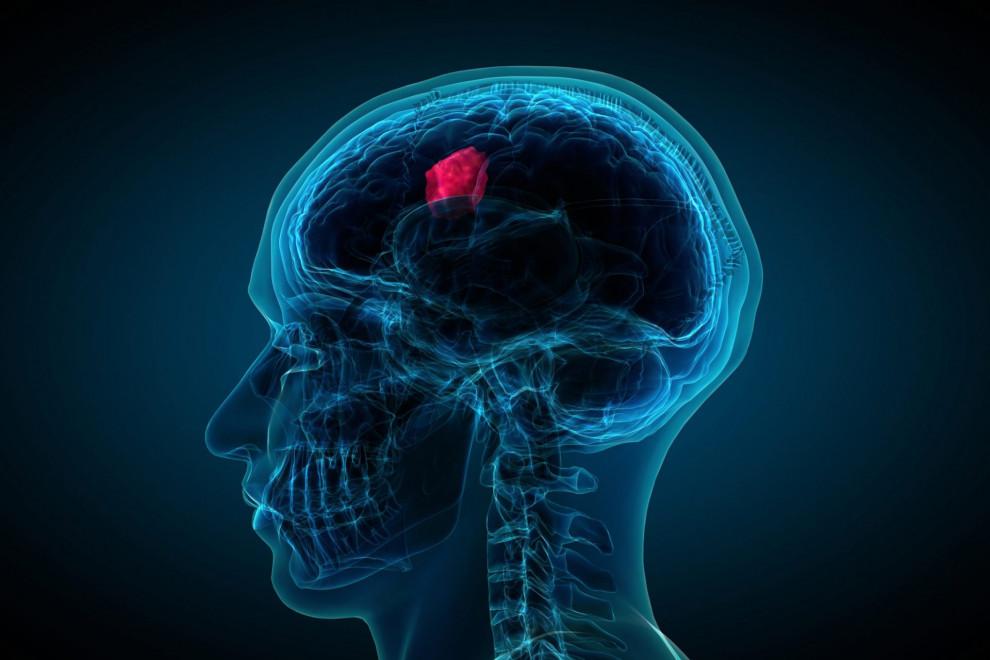 Tipos tumores cerebrales