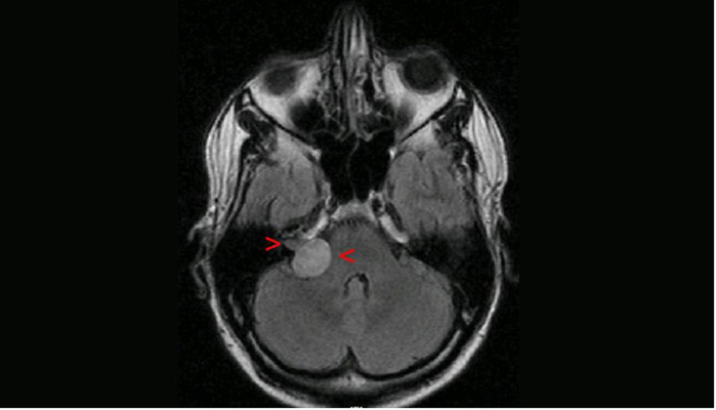 Neurinoma acústico
